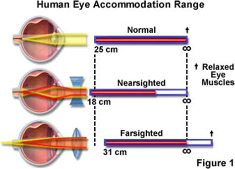 Short essay on eye diseases pictures